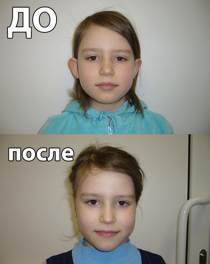 Пластика уха у детей фото цена