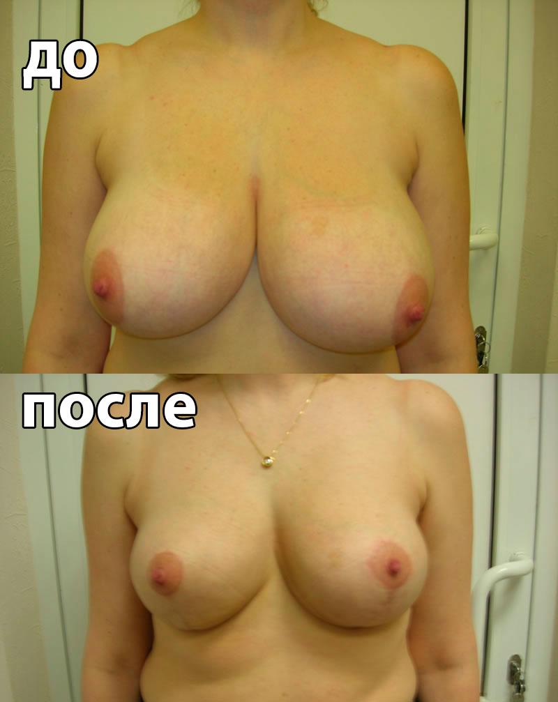 Противозачаточные таблетки для увеличения бюста
